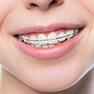 services braces