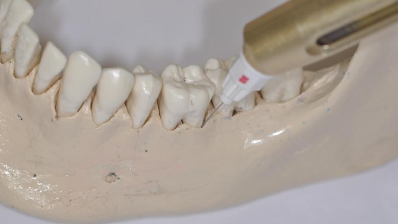 Drei Fragen zu schmerzfreier Zahnmedizin