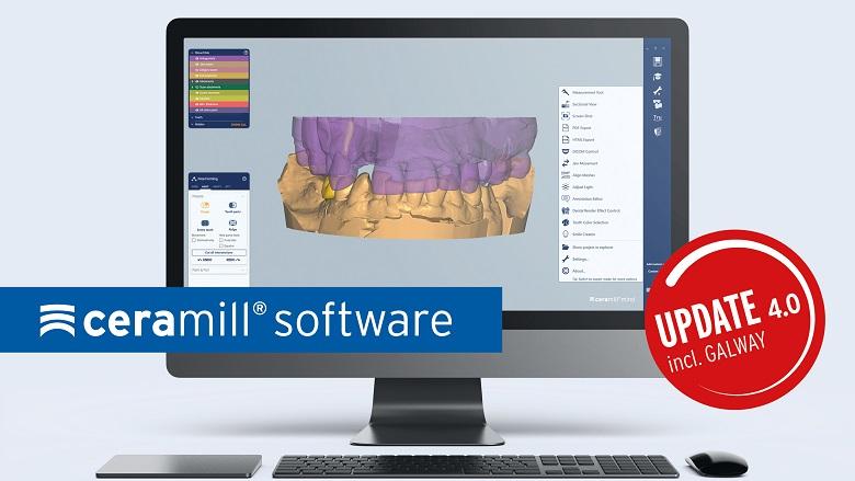 Amann Girrbach optimiert die gesamte Ceramill Software-Familie